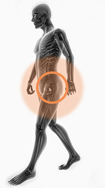 Totální endoprotéza kyčelního kloubu
