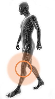 Totální endoprotéza kolenního kloubu