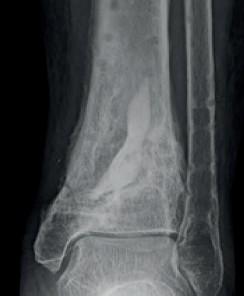 Stimulan, léčba kostních infekcí